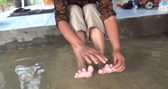 Korban Banjir di Jombang Mulai Terserang Gatal-gatal dan Diare